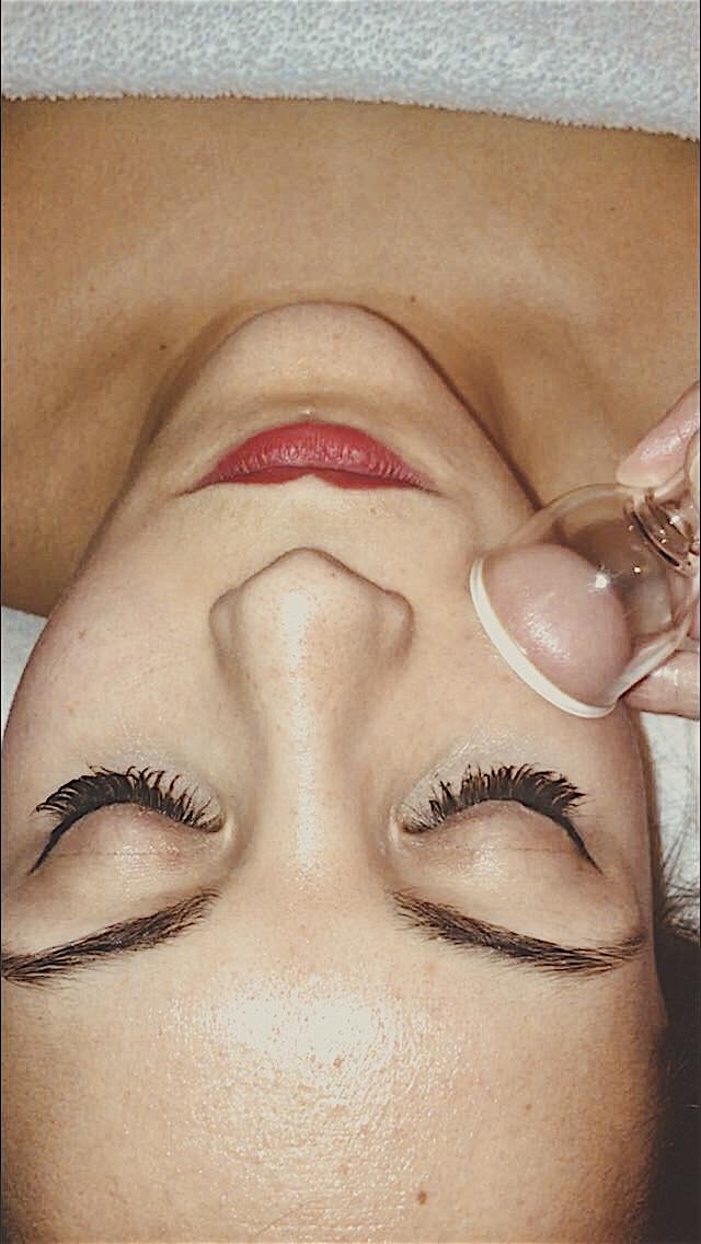 Facial Cupping Chi Spa