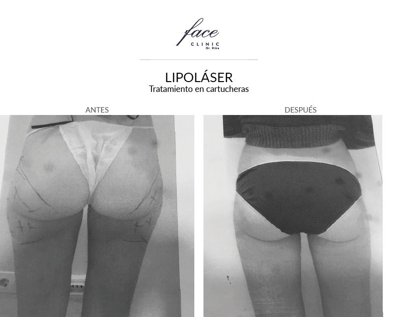 1-lipolaser-cartucheras-antes-despues-FaceClinic