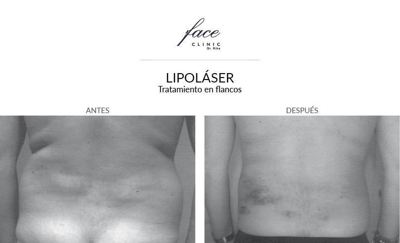 1-lipolaser-flancos-antes-despues-FaceClinic