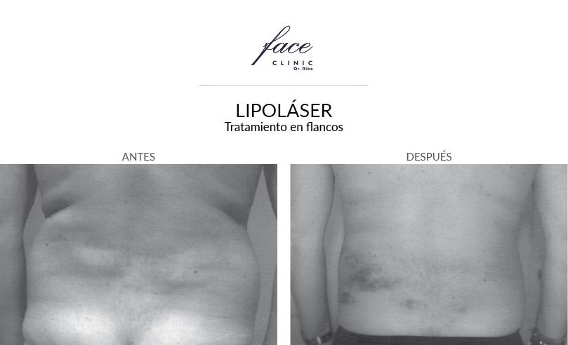 1-lipolaser-flancos-antes-despues-FaceClinic