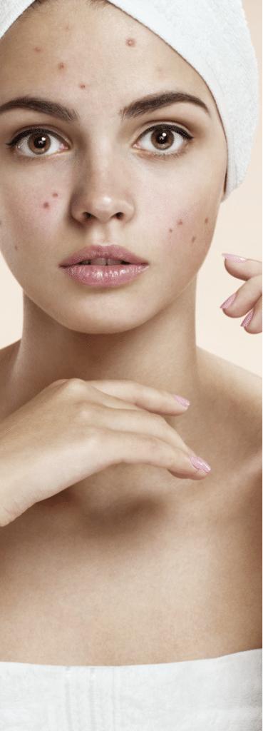 acne 2