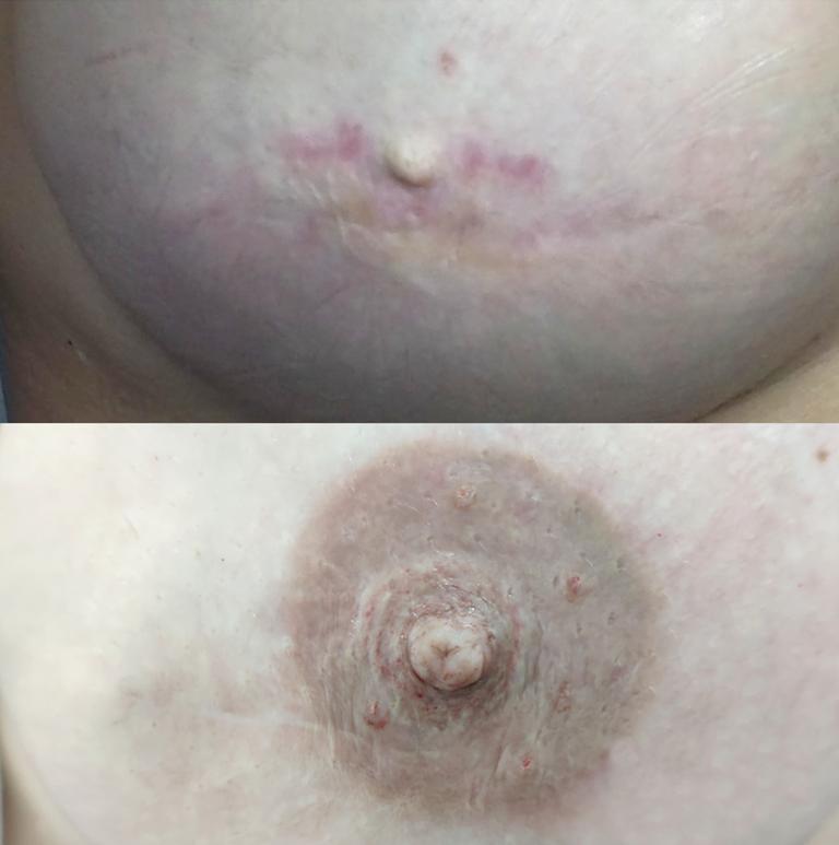 micropigmentacion oncologica